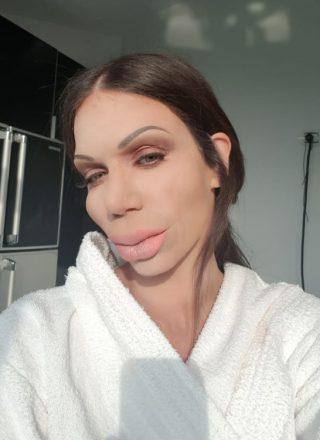 Κατερίνα Στικούδη – «Botox»