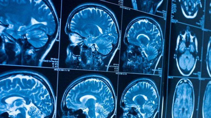 Οι εγκέφαλοι των φίλων εκπέμπουν στο ίδιο μήκος κύματος