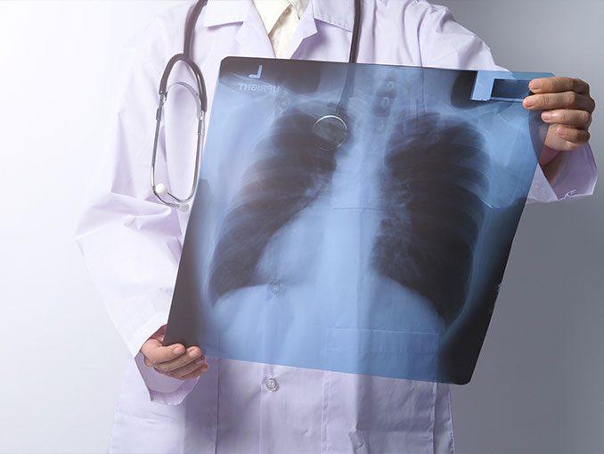 Ιδιοπαθής Πνευμονική ίνωση