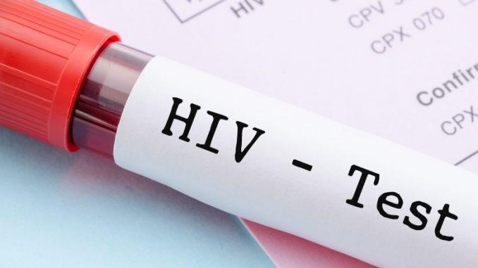 HIV λοίμωξη